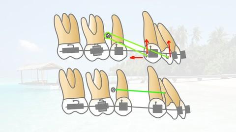 Mini Implants in Orthodontics