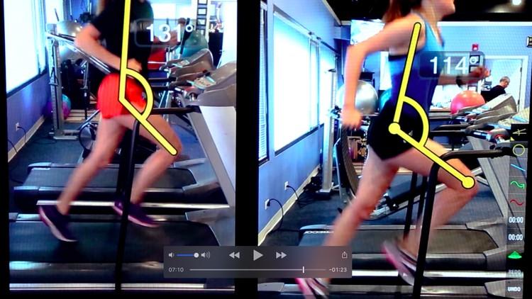 Hip Rehabilitation-Improving Athletic Power and Speed